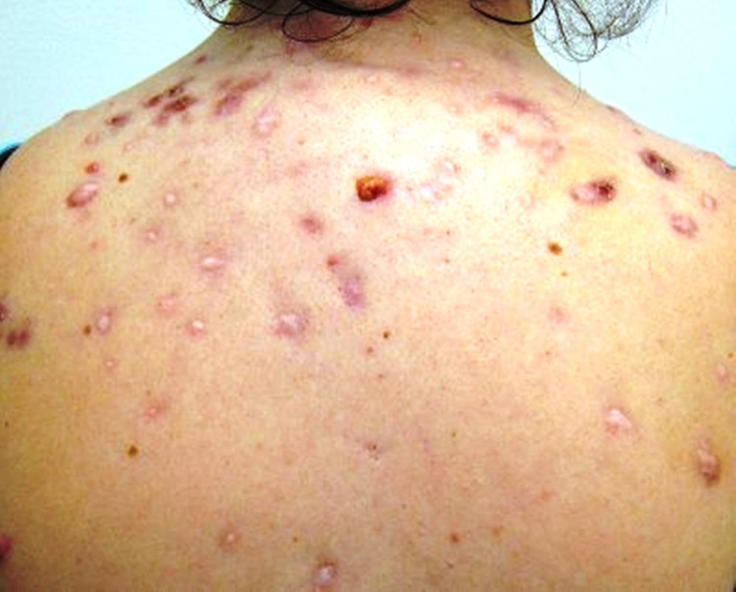 Image of acne on a patient's back